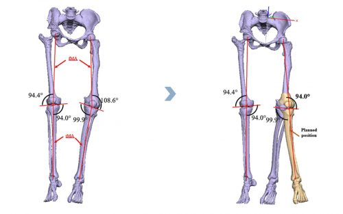 <p>Taking into account provided specifications and anthropometric measurements, patient-specific surgical guide has been designed according to planned femoral osteotomy and final position of femoral segments. Surgeon validated the design of surgical guide and other features of device package</p>