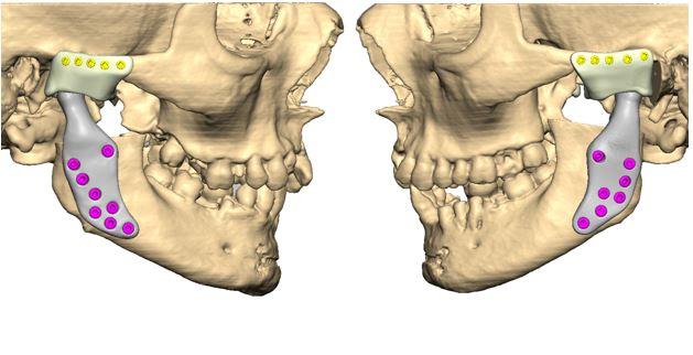 Patient-specific temporomandibular joint endoprosthesis for treatment of bilateral ankylosis